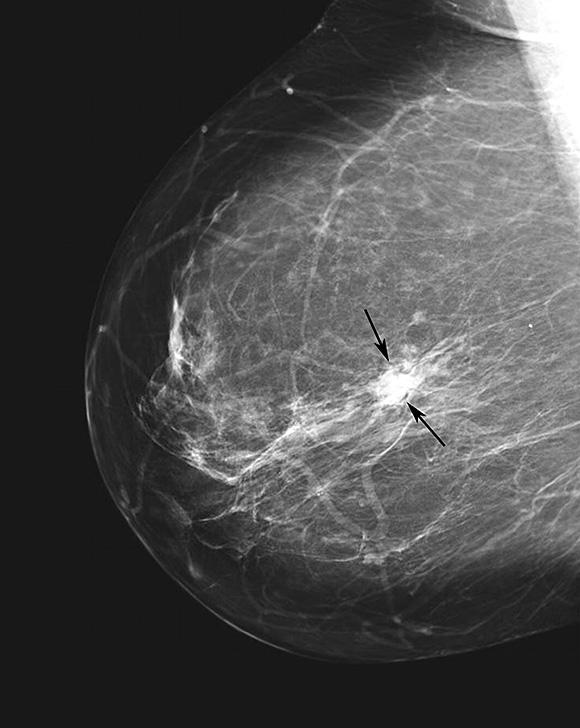 Ductal carcinoma mammogram
