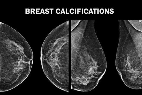 Breast calcifications