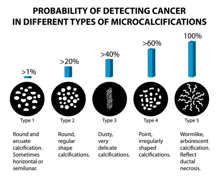 probability of detecting cancer