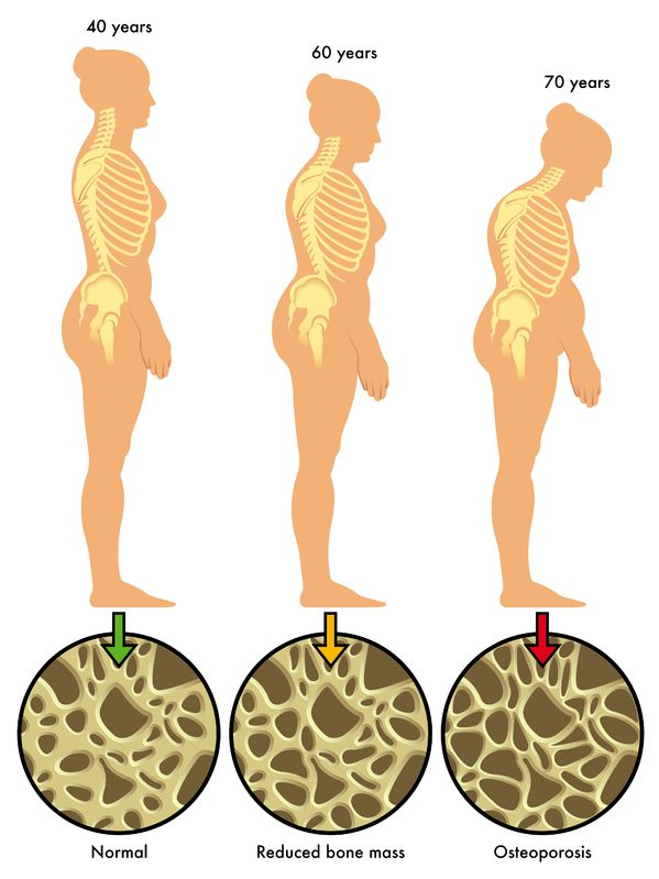 osteoporosis posture