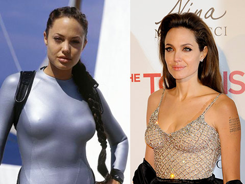 About Angelina Jolie's mastectomy decision