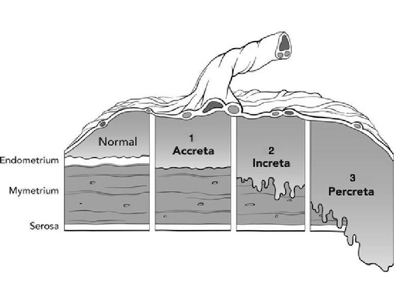 Placenta accreta